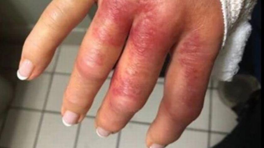 Mujer casi pierde su mano tras hacerse la manicure