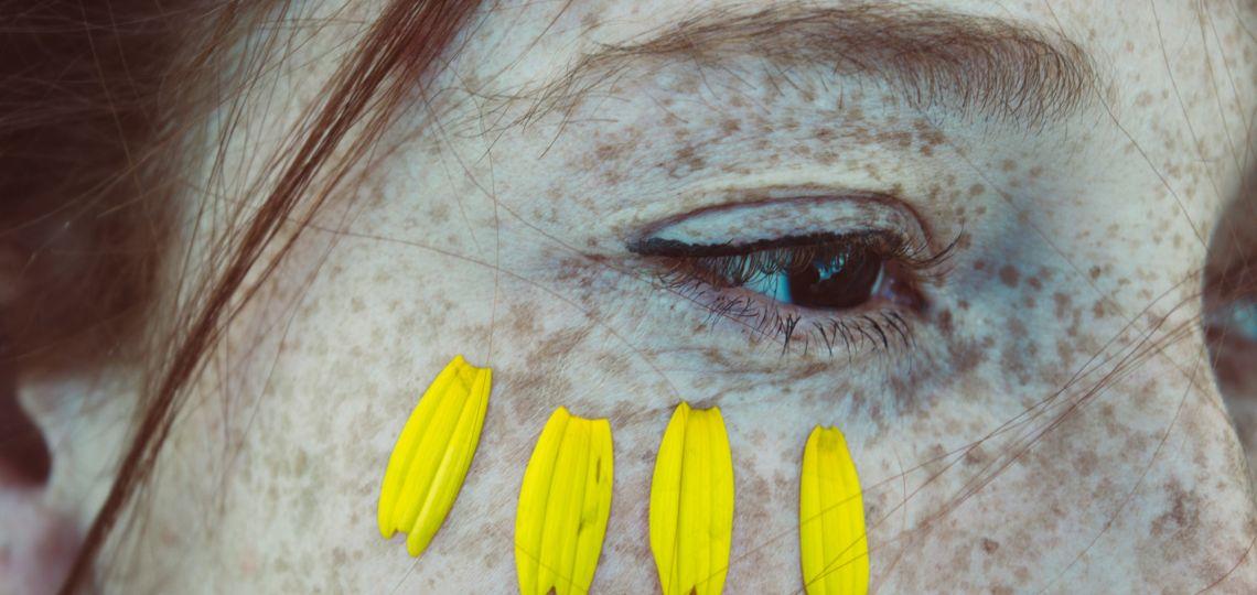 Decile chau al bisturí: los tratamientos faciales alternativos a la cirugías