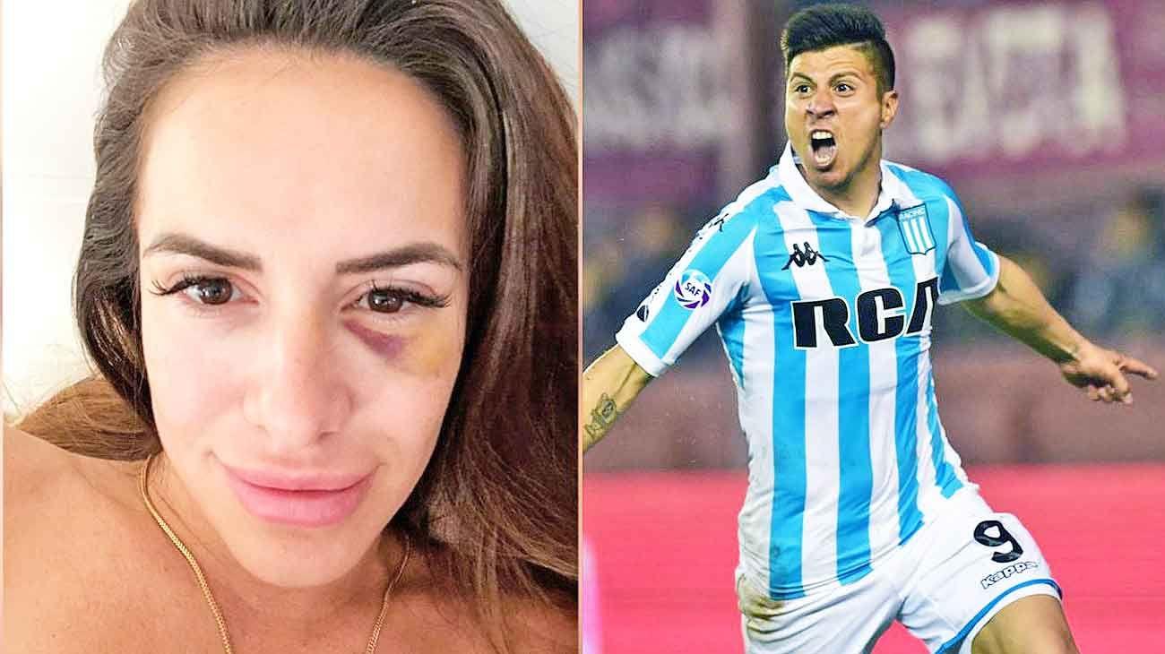Morella de las heras. La joven mostró las lesiones. / Jonatan Cristaldo. Su club, Racing, lo licenció cinco días.