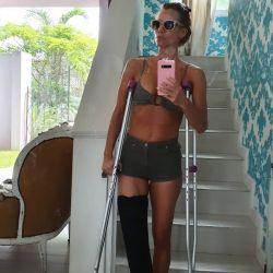 Nicole Neumann accidentada