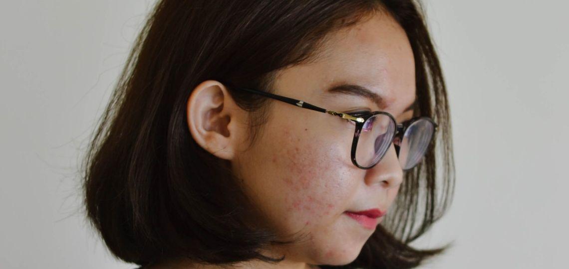 ¿Por qué aparece el acné después de los 25 años?
