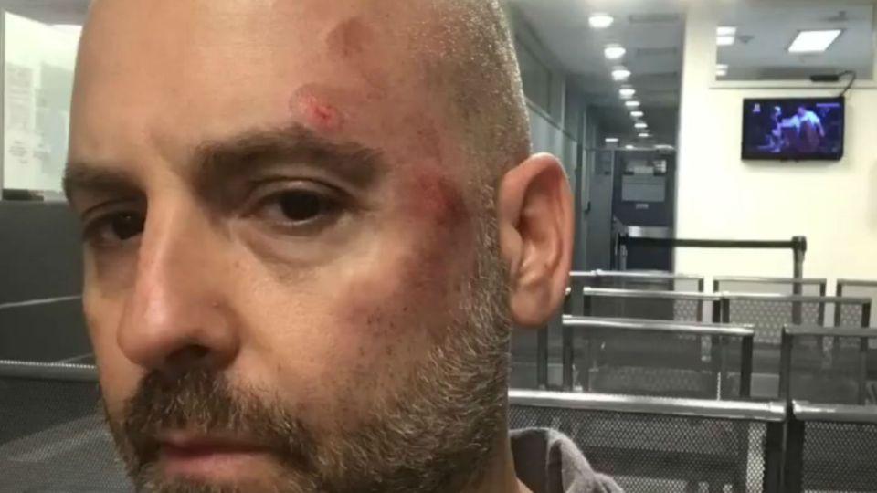 ¡Irreconocible! Mirá cómo quedo José María Muscari tras sufrir un fuerte accidente