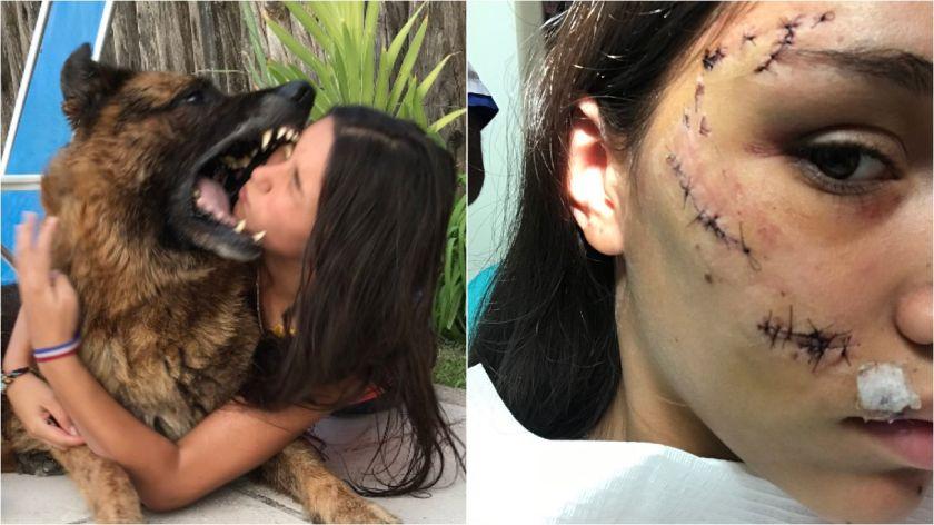 Se sacaba fotos junto a un perro y terminó desfigurada