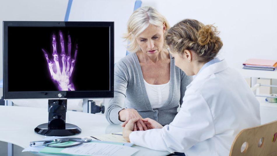 foro medicina clinica artrosis meloxicam glucosamina 20200124