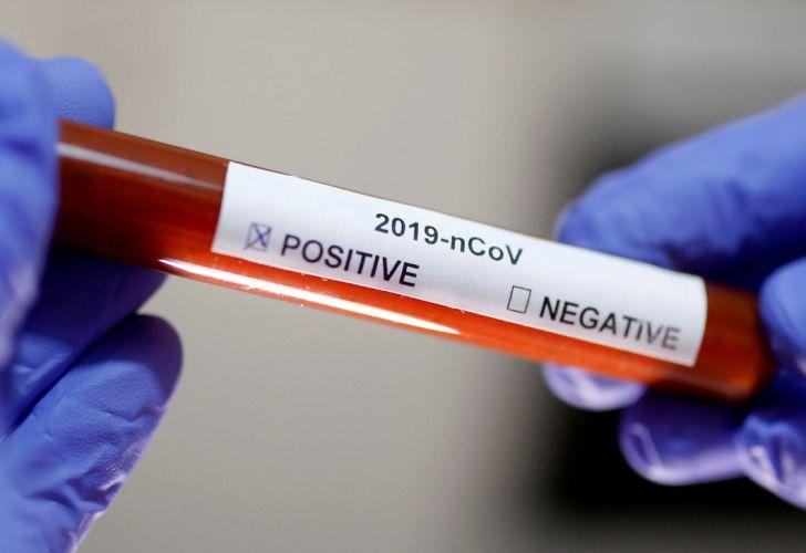 Cómo funciona la prueba rápida del coronavirus? | Perfil