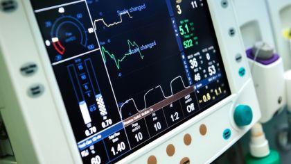 respirador artificial g_20200325