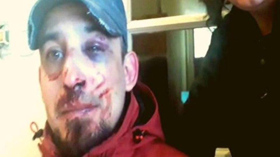 Bahía Blanca. Sacó a pasear a su perro y recibió una brutal golpiza de la Policía.