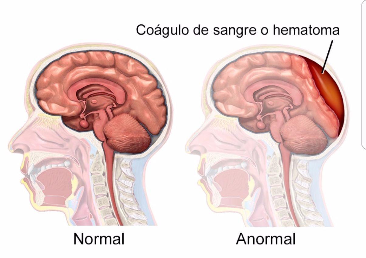 En personas que toman anticoagulantes el riesgo de hematoma es mayor