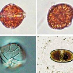 Microfotografía de una de las especies causantes de la marea roja: Alexandrium tamerense, las cuales fabrican distintos tipos de toxinas.