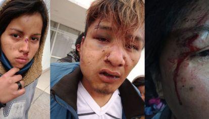 """Los jóvenes """"desfigurados"""" por los golpes de la policía."""