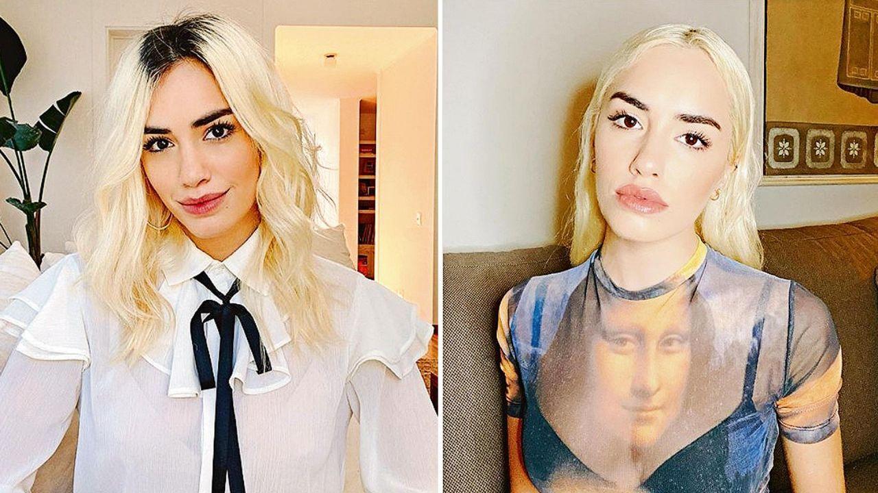 Antes y después de Lali Espósito