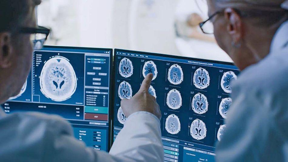 20210110_cerebro_medicina_cedoc_g