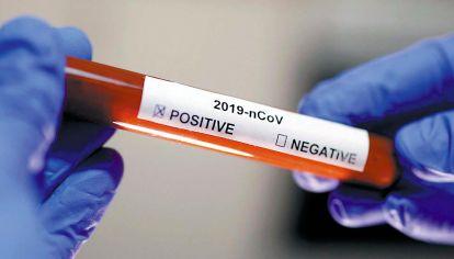 PCR. Todo lo importante desaparece en un instante, ante un resultado azaroso.