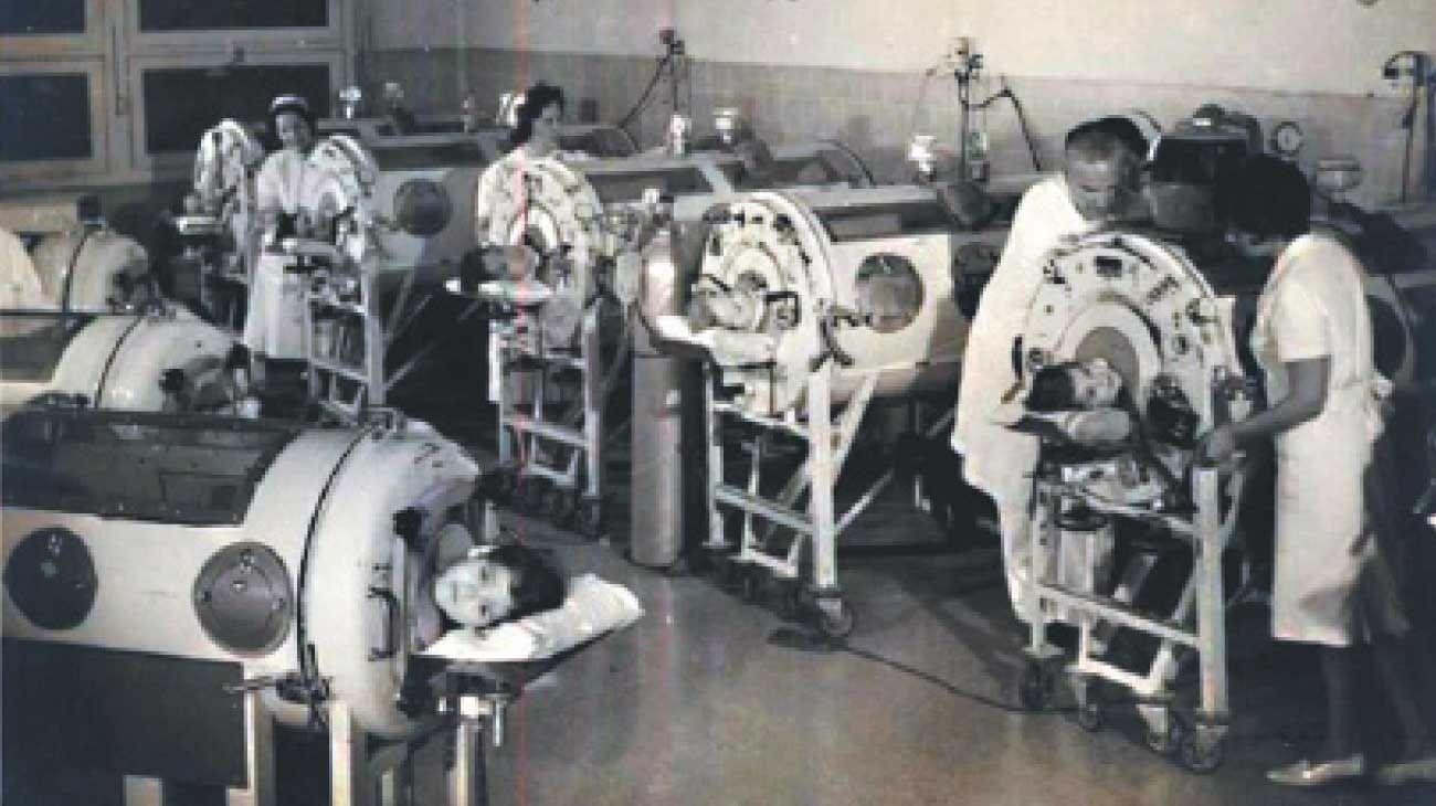 Polio, 1956. Miles enfermaron en Argentina antes de la vacuna. Pulmotores en un hospital.