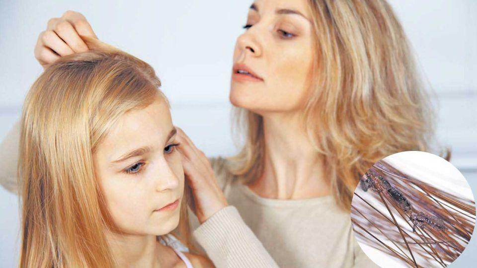 """Sin piojos. El estudio afirma que el efecto se debió al aislamiento y al mayor tiempo """"libre"""" de los padres en casa."""
