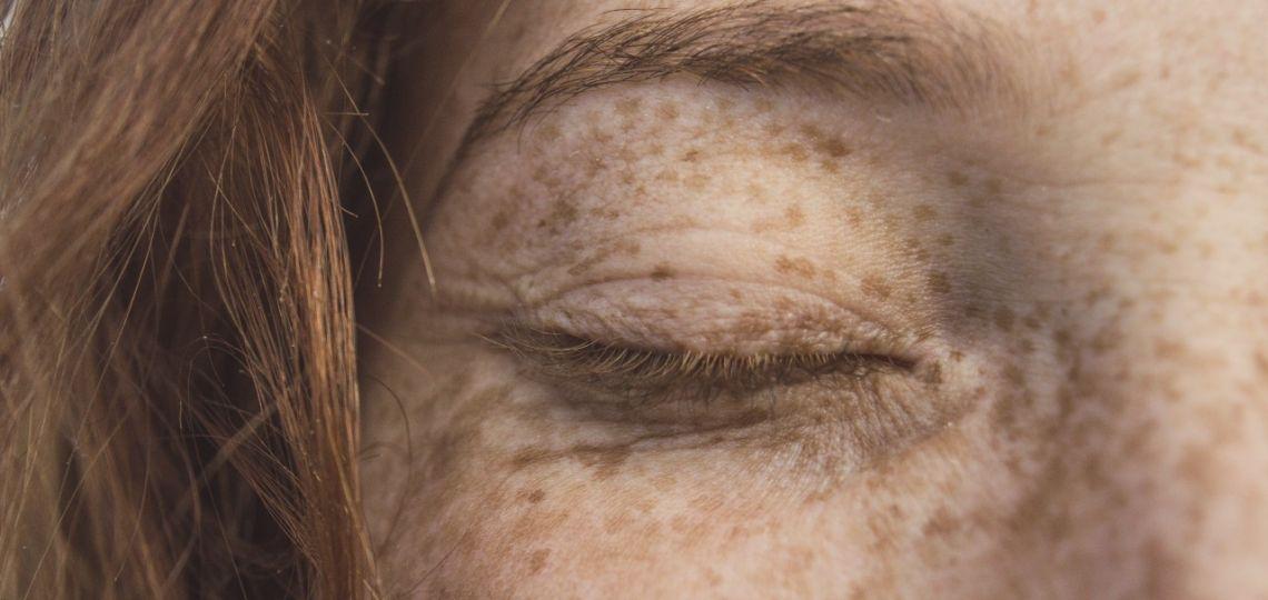 Ácido felúrico: descubrí lo que este nuevo ingrediente de moda puede hacer por tu piel