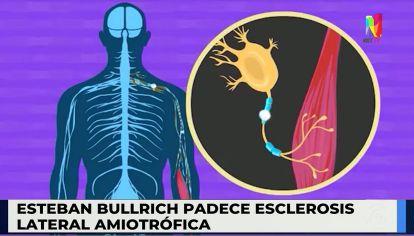 El senador Esteban Bullrich padece una enfermedad neurodegenerativa