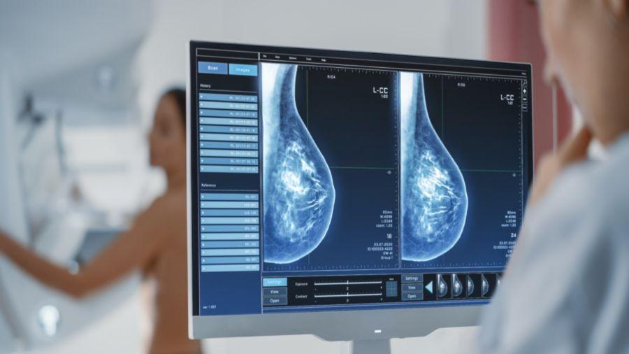Puede presentar nódulos, quistes o microcalcificaciones, que indican que son mamas densas en actividad.
