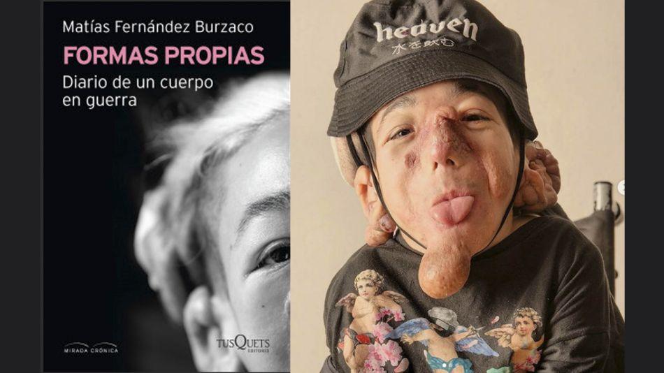 MAtías Fernández Burzco