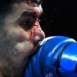 El argelino Younes Nemouchi sangra al recibir un puñetazo del filipino Eumir Marcial durante su combate de boxeo de octavos de final de la categoría media masculina (69-75kg) durante los Juegos Olímpicos de Tokio 2020 en el Kokugikan Arena en Tokio. | Foto:Luis Robayo / POOL / AFP