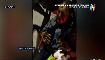 Horror en La Plata: intentaron prender fuego a un sintecho