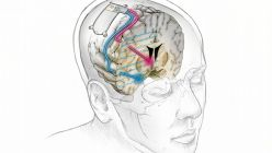 Dispositivo Cerebral Depresión