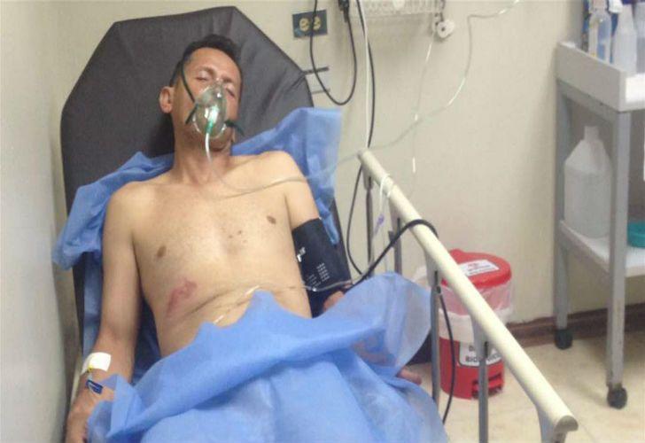 Luis Diaz, fotografo herido por la policía venezolana.