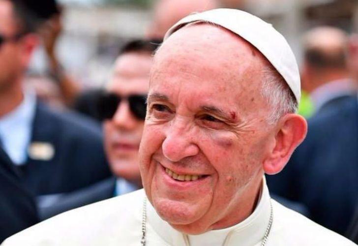 El Papa Francisco, luego del golpe en Cartagena de Indias.