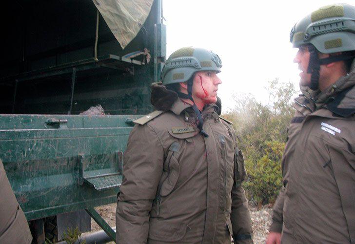 El subalférez Echazú fue herido en el rostro el día del operativo.