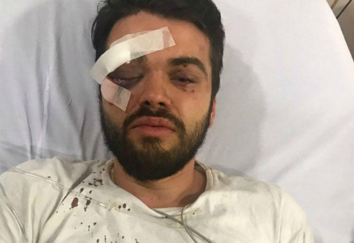 El rugbier Jonathan Castellari fue brutalmente atacado afuera de un local de comidas rápidas.