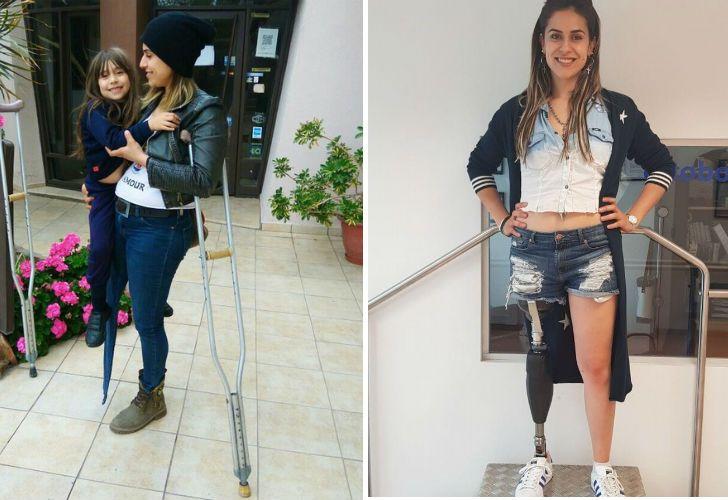 María Emilia tiene 26 años y una hija. Gracias a la ayuda de la gente consiguió una pierna ortopédica.