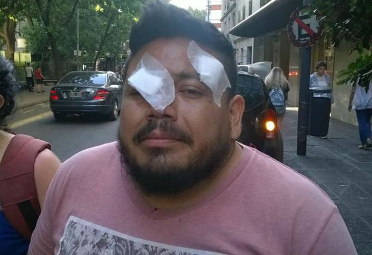 - Un manifestante que participaba de las protestas contra la reforma previsional el pasado lunes quedó ciego de un ojo por una bala de goma disparada por los efectivos de seguridad.