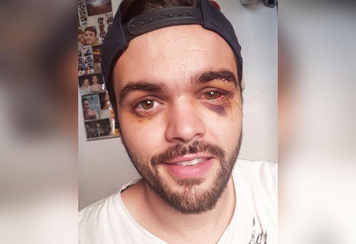El joven rugbier de25 años fue agredido por su condición sexual el primero de diciembre.