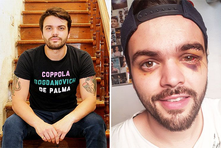 Recuperado. Castellari tiene 25 años y vive en un PH en La Paternal. A un mes y medio del ataque que sufrió, cuenta que aún tiene miedo de salir a la calle y que teme a los grupos de gente. Durante y después de su internación fue posteando cartas y fotos en su Facebook.