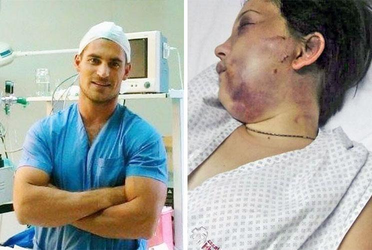 Ataque. El rostro desfigurado de María Belén Torres, la mujer que sufrió una brutal golpiza en enero de 2017 y se animó a denunciarlo.