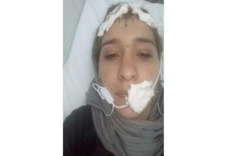 mujer golpeada en salta 04142018