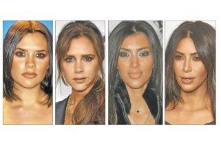 Crecen cirugías de cachetes, lo nuevo para afinar el rostro